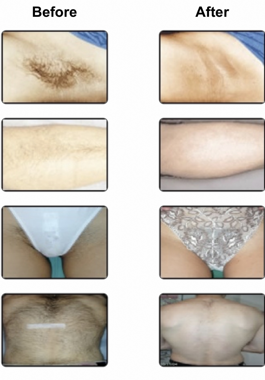 Laser Hair Removal Stotfold